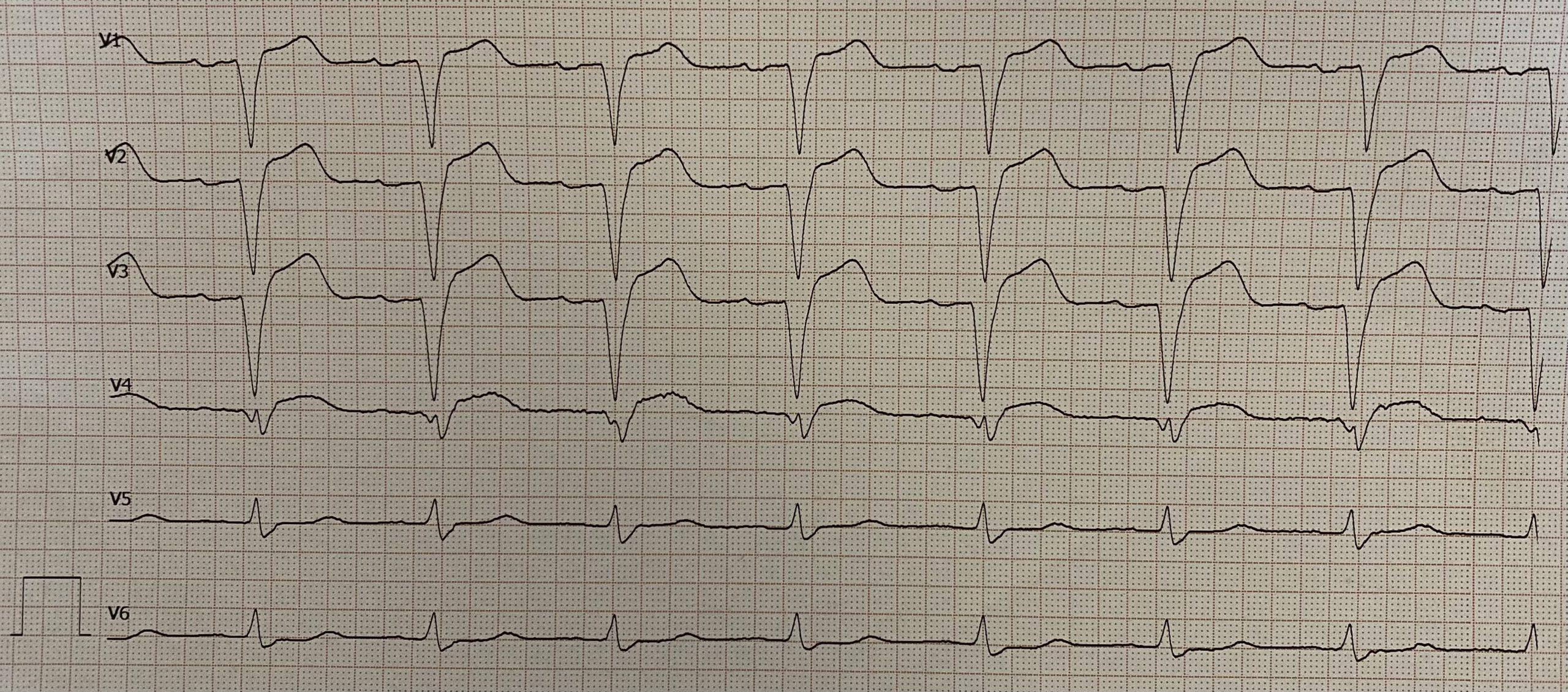 EKG 2 - STEMI