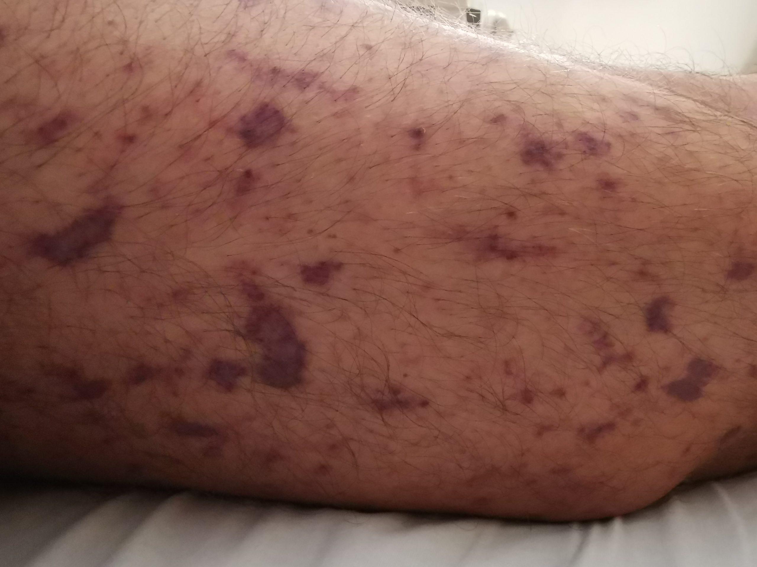 Meningokokken-Meningitis
